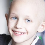 a caucasian girl with hair loss due to cancer smiling at the camera